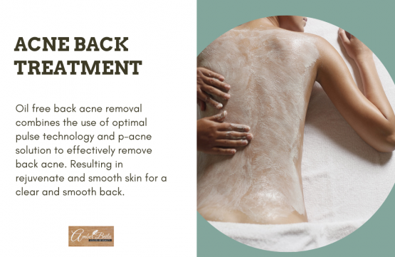 OPT Back Treatment at Amber Beila Raffles place