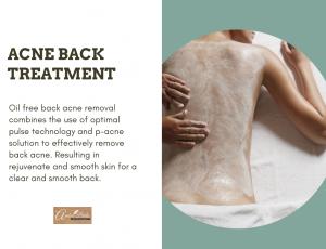 OPT Back Treatment at Amber Beila 14 Chun Tin