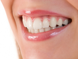 RF Teeth Whitening for 1 Person at Chrysalis Spa AMK Hub
