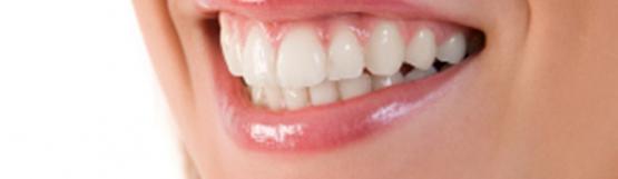 RF Teeth Whitening for 1 Person at Chrysalis Spa AMK Hub